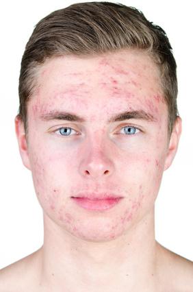 Traitement de l'acné sévère