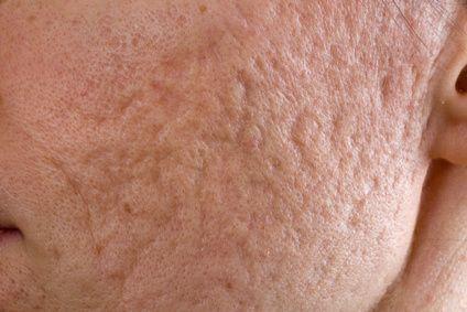Traitement des cicatrices profondes d'acné