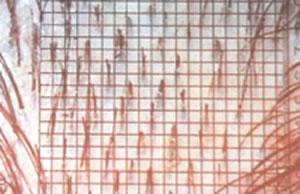 aspect dermatoscopique d'une AAGM