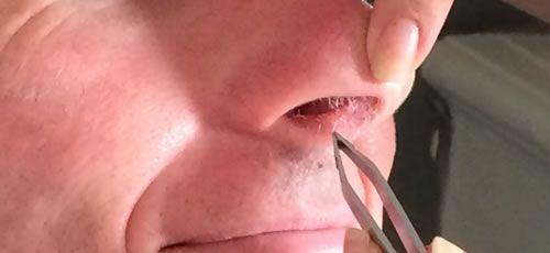 Epilation des poils du nez