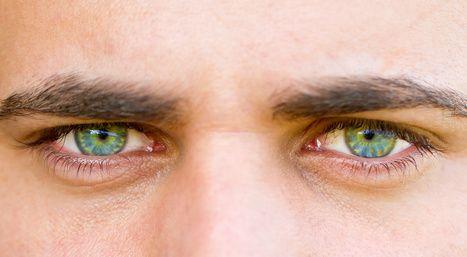 Les poches sous les yeux