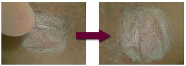 Epilation du sexe de l'homme - crème dépilatoire