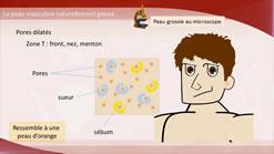 La peau grasse de l'homme