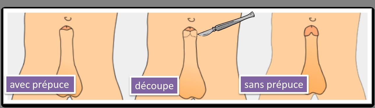 La circoncision - Esthétique Homme