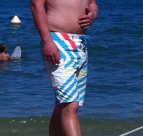 Médecine Esthétique pour réduction de la graisse chez l'homme