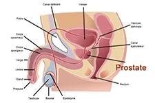 Cancer de la prostate et couple